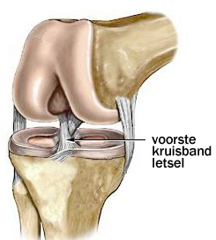 Knie voorste kruisband gescheurd